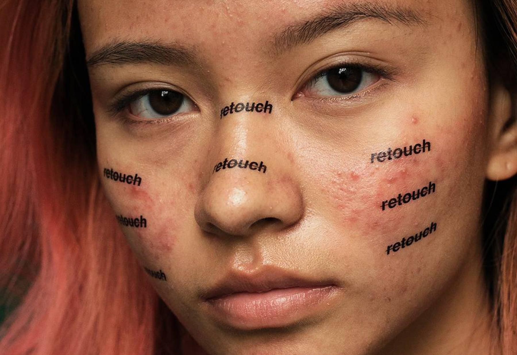 acne, peter devito