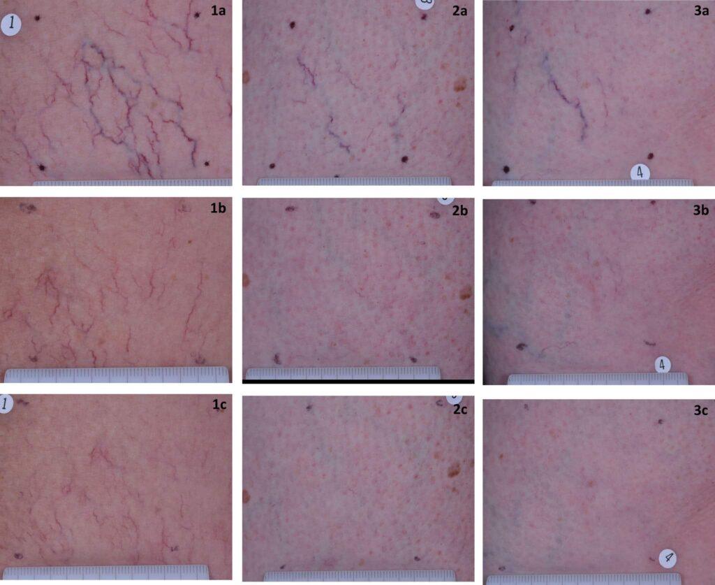 laser KTP capillari