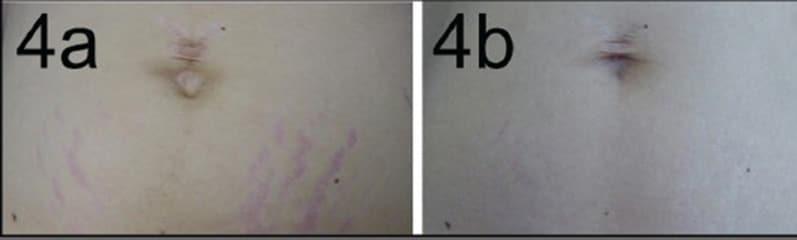 laser eliminare smagliature