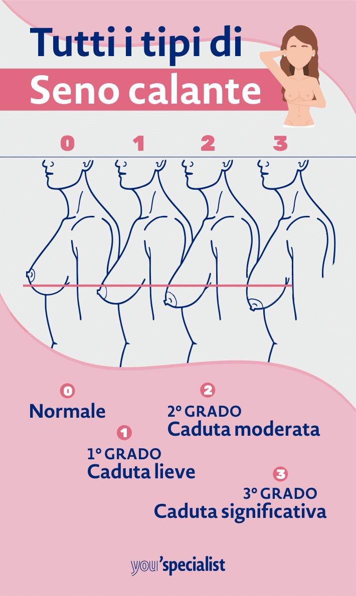 seno calante: gravità