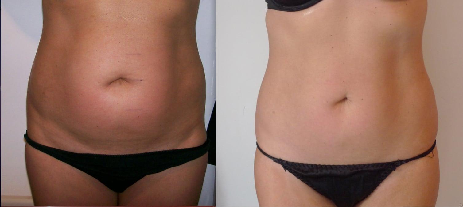 cavitazione medica foto prima e dopo