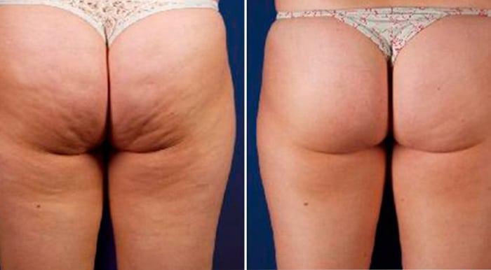 liposuzione laser non invasiva, opinioni e foto