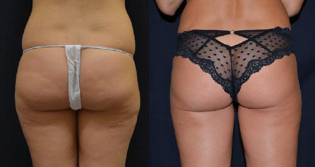 liposuzione bodytite, foto hd, opinioni, video