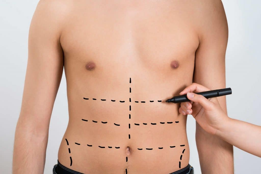 liposuzione bodytite. foto HD, video, opinioni