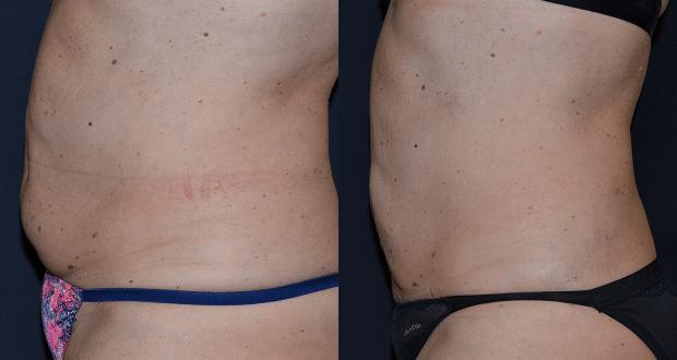 liposuzione bodytite, foto hd, video, opinioni
