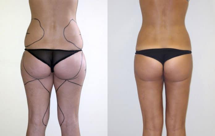 liposuzione: foto prima e dopo, opinioni e video