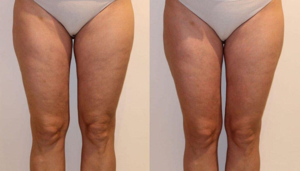 linfodrenaggio cellulite