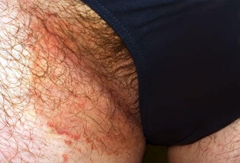 Funghi della pelle: Tinea Cruris, foto hd