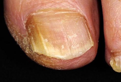 Funghi della pelle: fungo dell'unghia del piede, foto hd