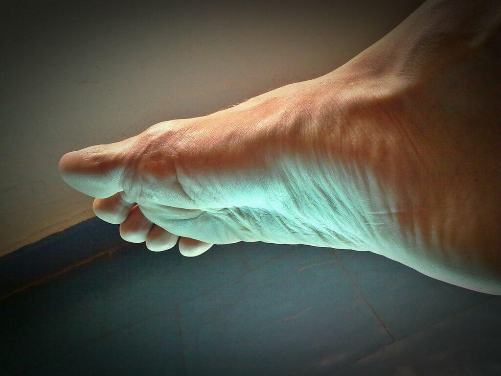 verruche piedi e mani, foto, sintomi, cura