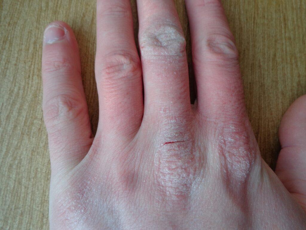 Dermatite atopica mani