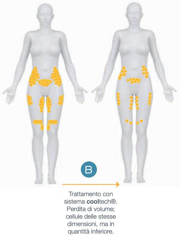 Effetti del trattaemnto Cooltech sul grasso corporeo