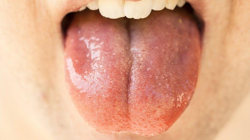 dolore alla lingua
