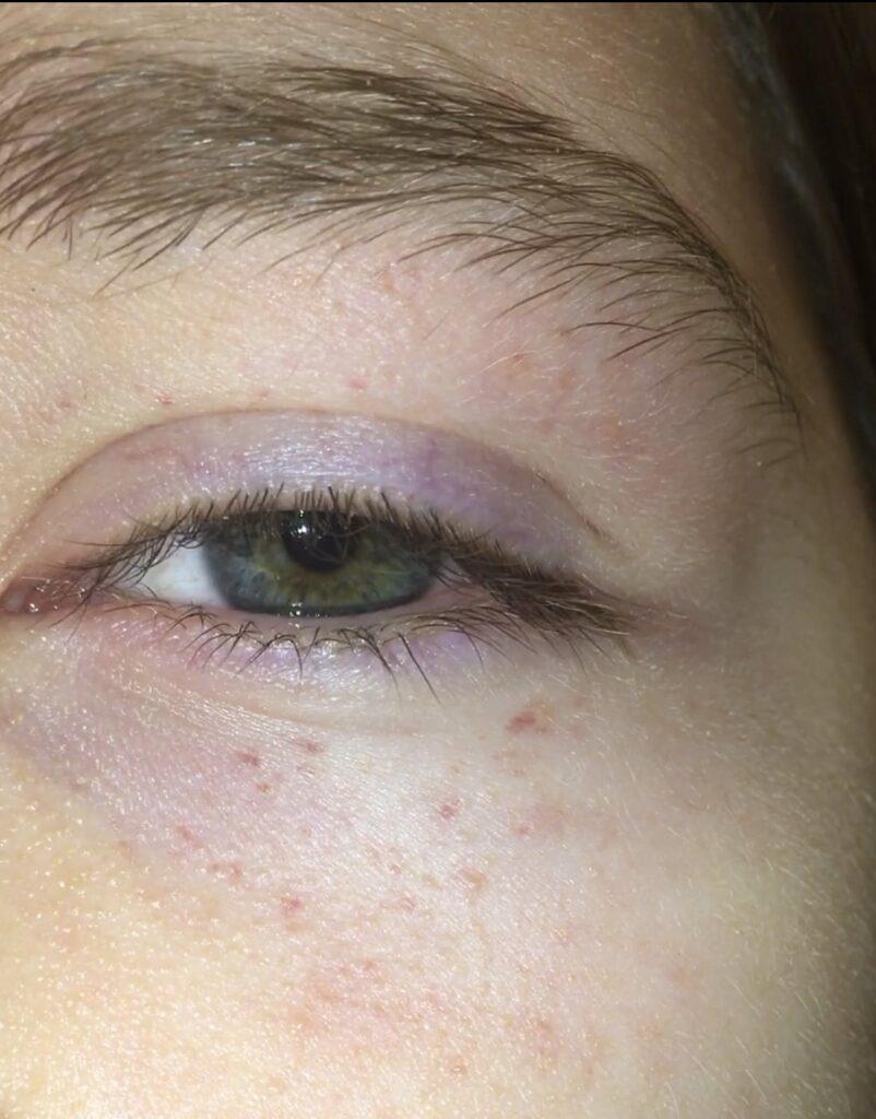 Petecchie contorno occhi