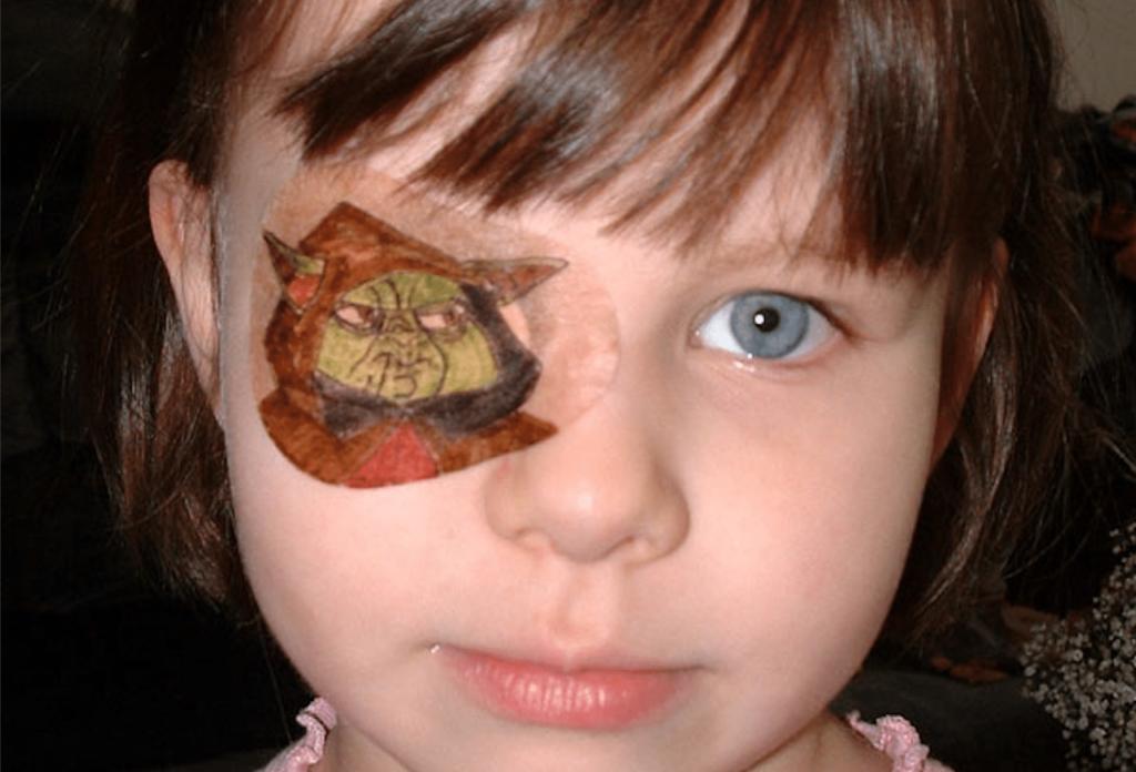 Occhio Pigro Ambliopia