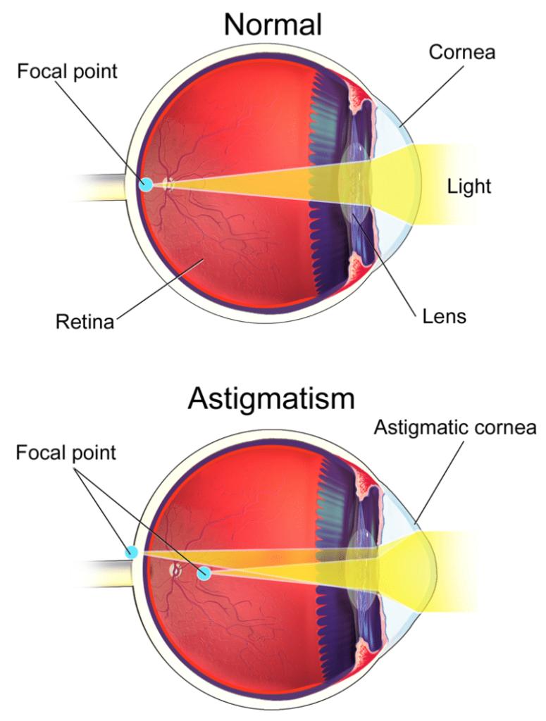 Cornea Astigmatica