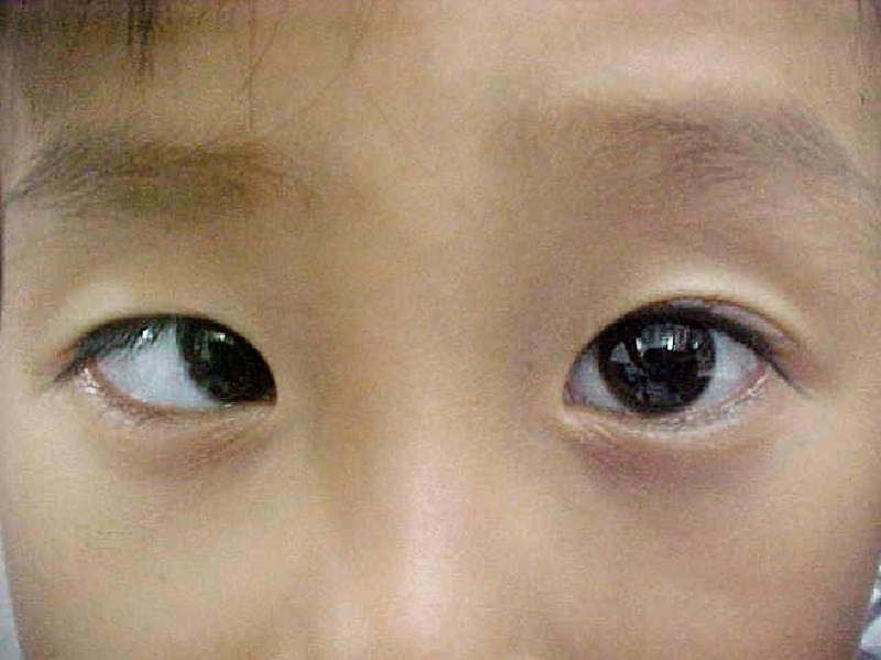 Esotropia essenziale infantile
